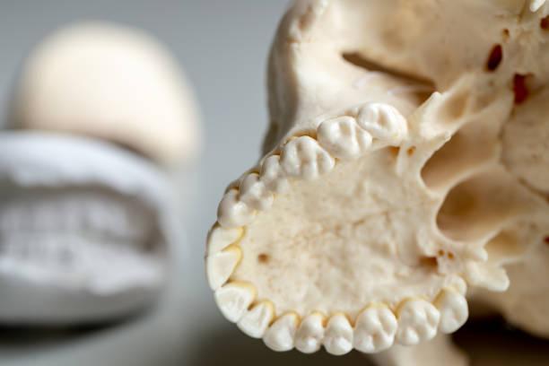 Étudier le casting de Diagnostic cast et modèles de plâtre dentaire au laboratoire dentaire. - Photo