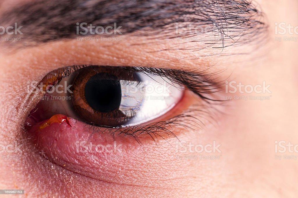 Stye - Eye Infection royalty-free stock photo