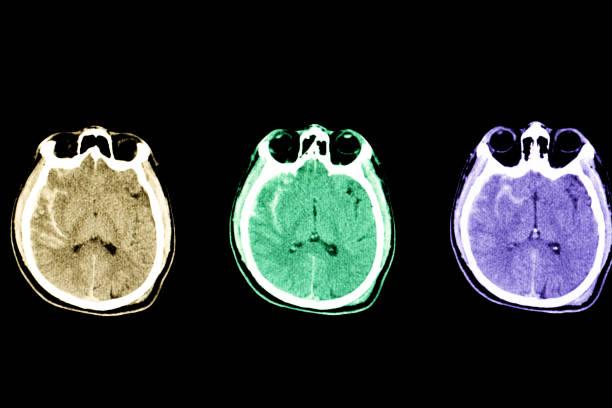 subarachnoid hemorrhage CT stock photo
