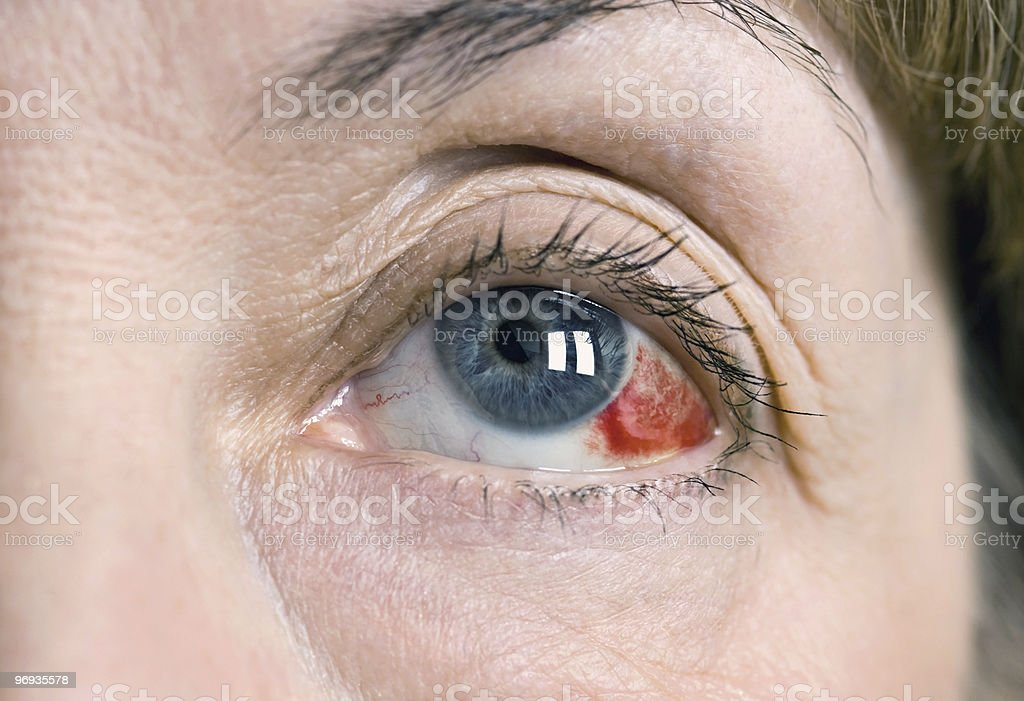 Subconjunctival Hemorrhage stock photo