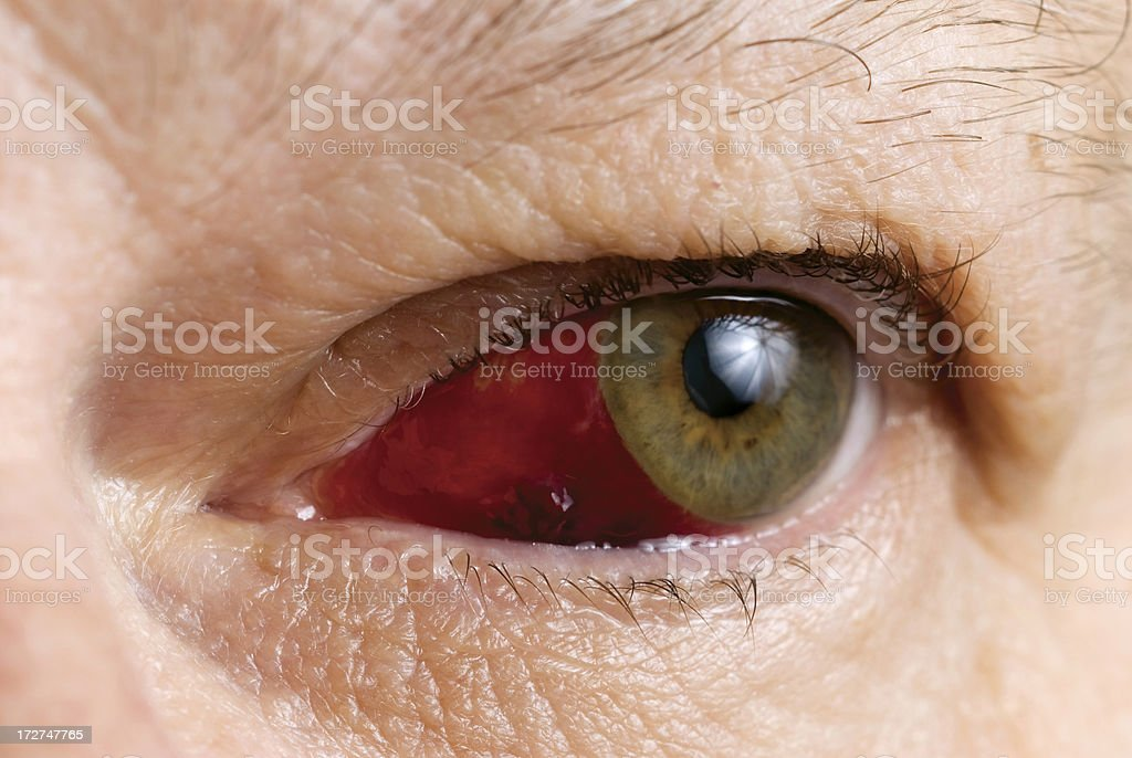 Subconjunctival Hemorrhage with blood clot (Haematoma) royalty-free stock photo