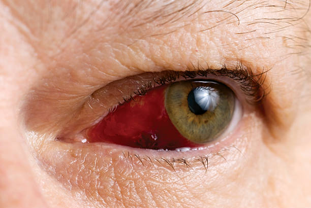 Subconjunctival Hemorrhage with blood clot (Haematoma) stock photo