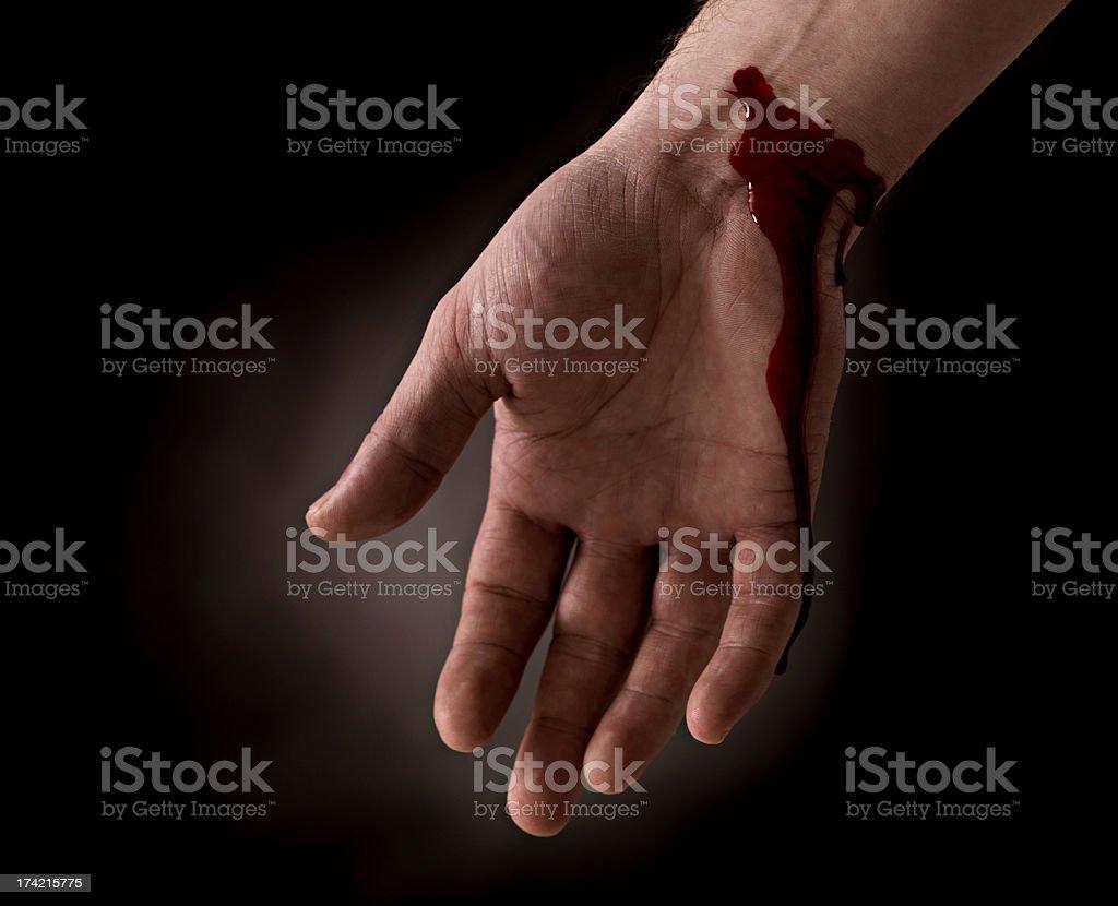 Selbstmord Versuch-Tränendes Handgelenk der hand – Foto