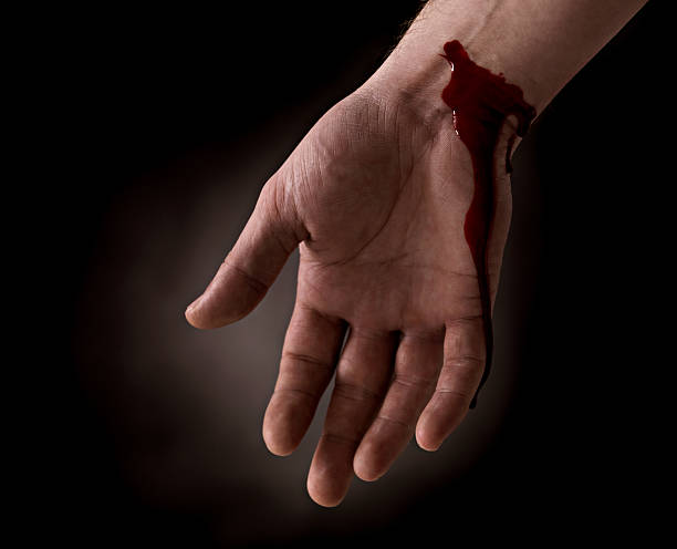 suicide attempt - bleeding wrist of human hand - knife wound stock photos and pictures