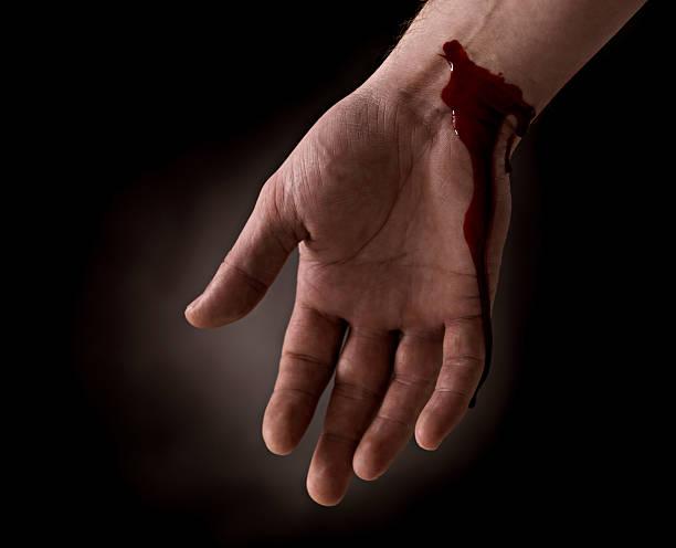 Suicide attempt - Bleeding wrist of human hand stock photo