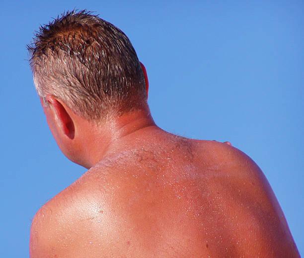 Sunbathing (roasted) stock photo