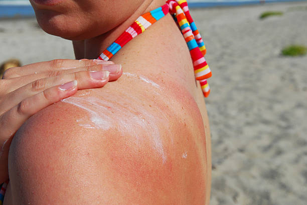 sunblock application - verbrand stockfoto's en -beelden