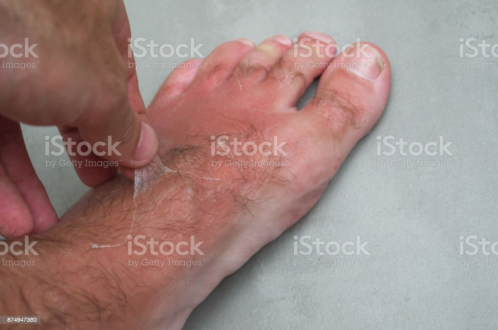 Sunburn on man's feet stock photo