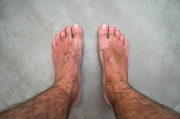 sonnenbrand auf mannes füße - sonnenbrand heilen stock-fotos und bilder