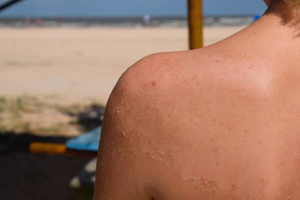 sonnenbrand auf der haut des rückens. peeling, haut schält sich. gefährliche bräune - sonnenbrand heilen stock-fotos und bilder