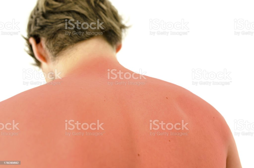 Sunburn stock photo