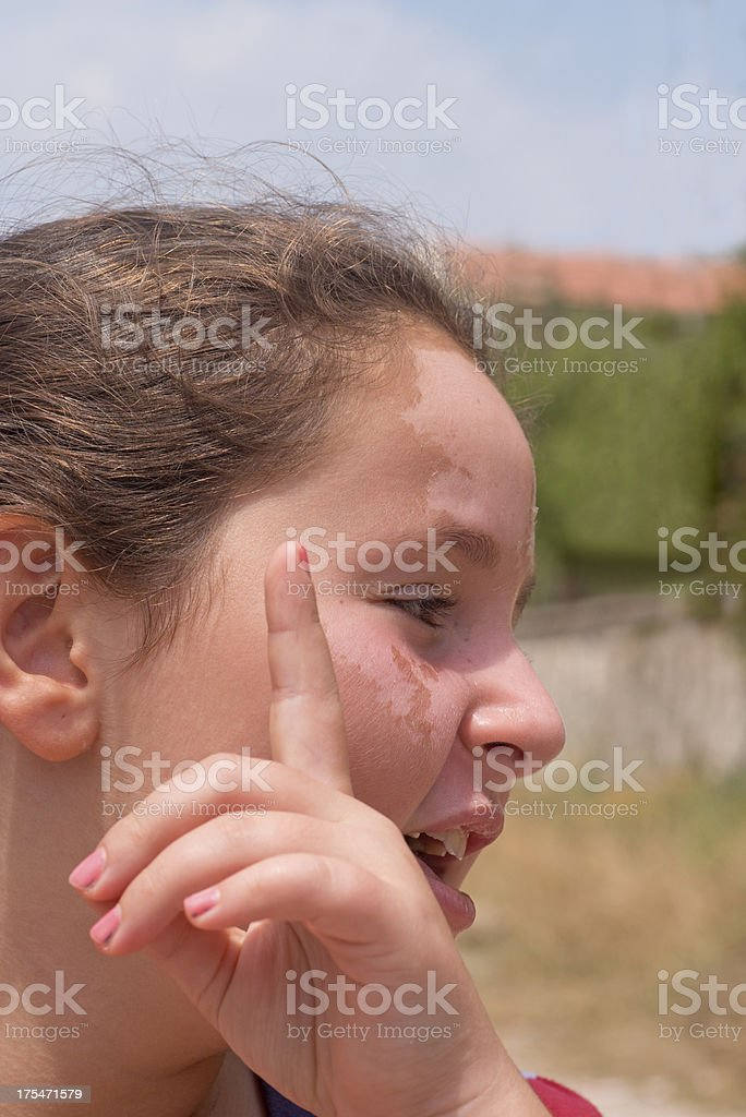 Sunburn. Protecting children from excessive sun stock photo