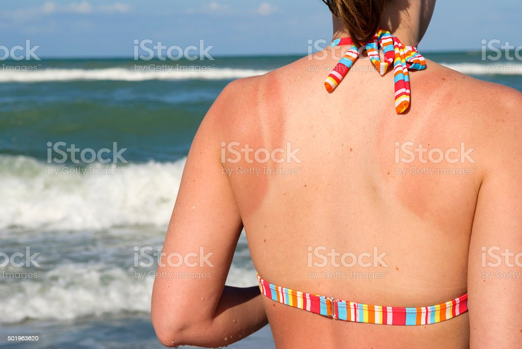 Sunburned back at beach stock photo