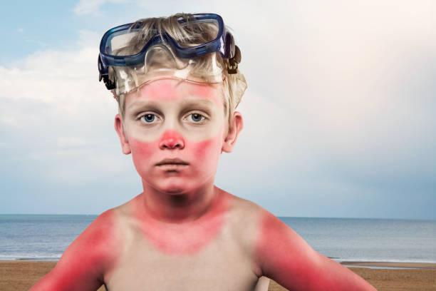Sonnenverbrannter Junge – Foto