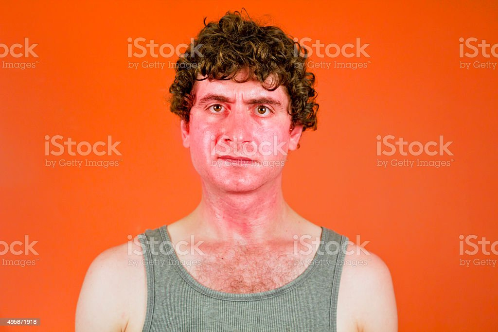 Sunburned Sweaty Man stock photo