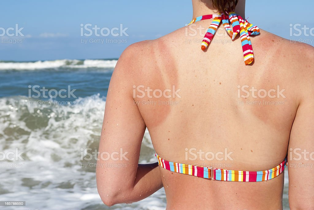 Sunburned woman at beach stock photo