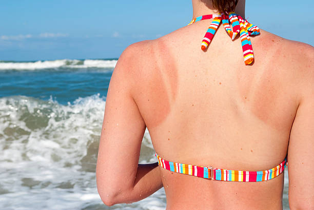 sunburned woman at beach - verbrand stockfoto's en -beelden