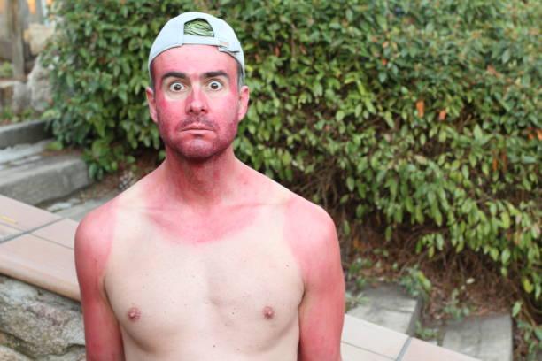Jovem queimado de sol com linhas extremas de bronzeamento - foto de acervo