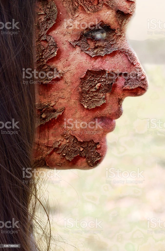 Sunburnt face stock photo