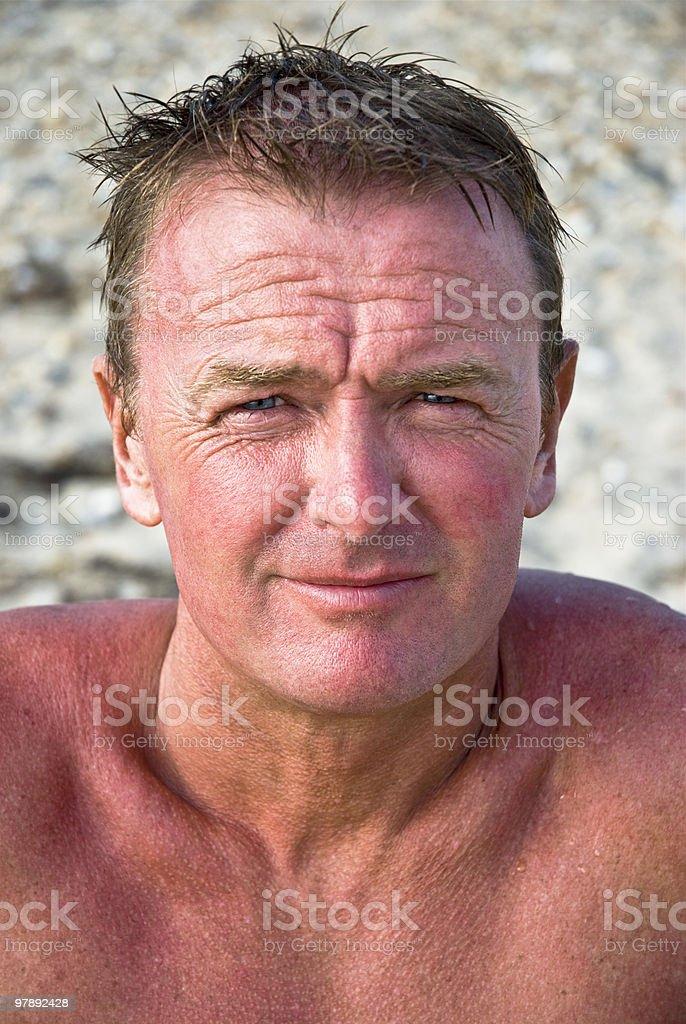 Sunburnt man royalty-free stock photo