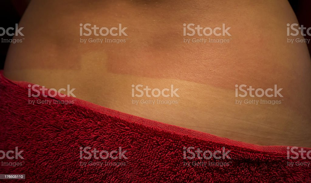 Sunburnt on the back stock photo