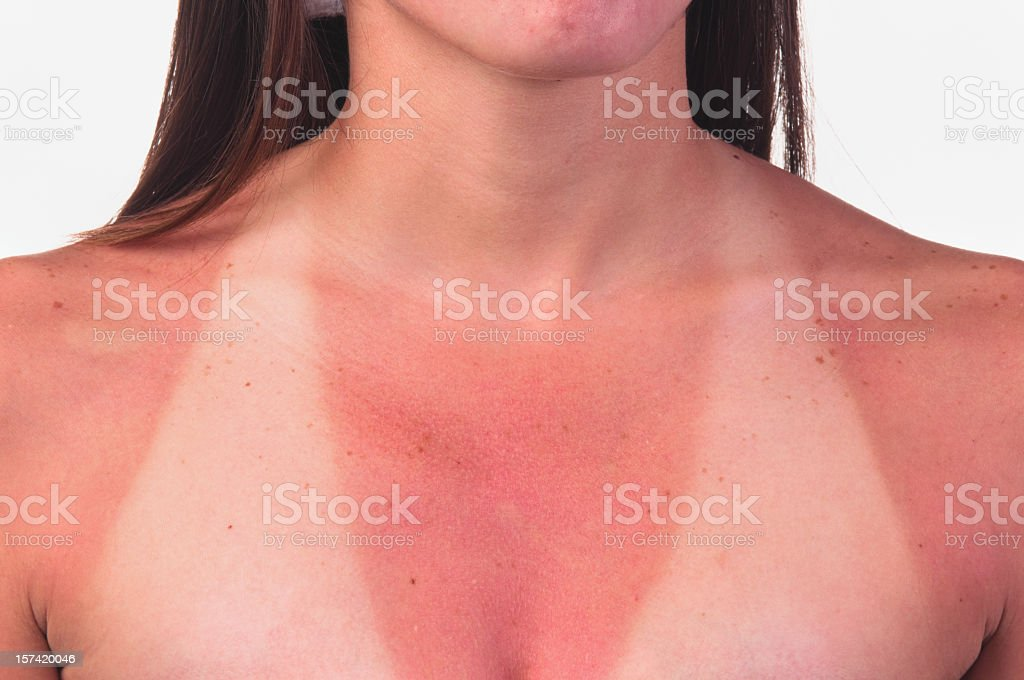 Sunburnt relief stock photo