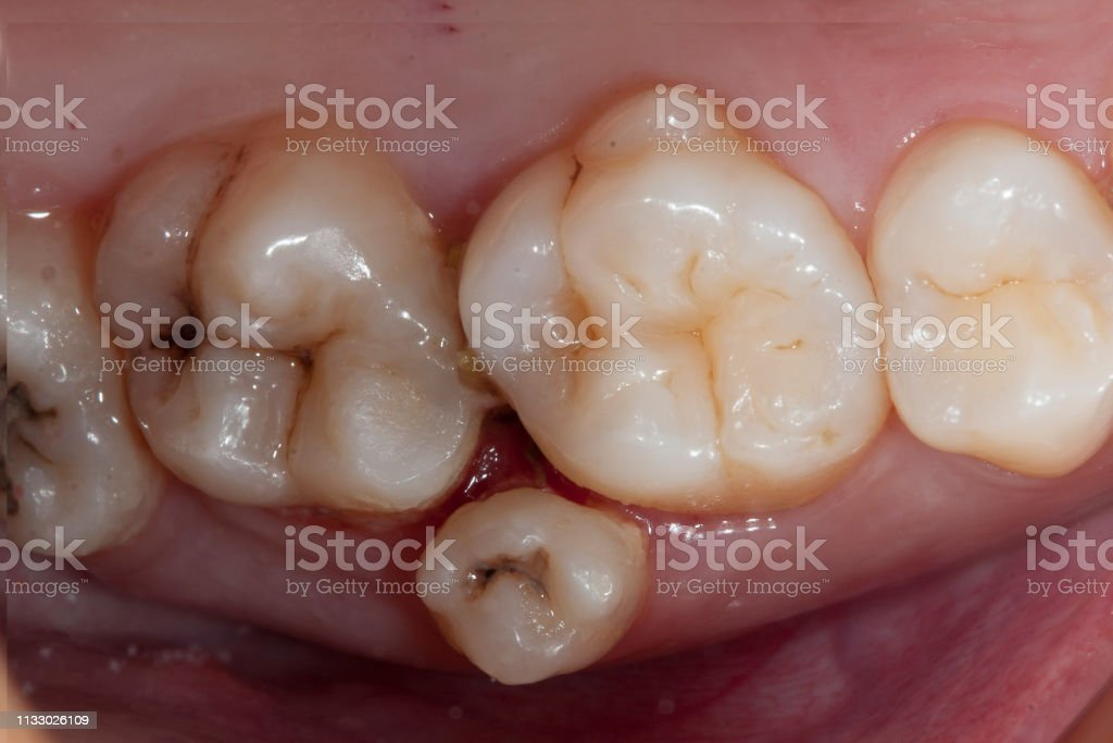supernumerary tooth stock photo