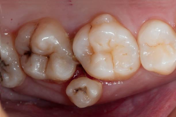 supernumerary tooth stock photo