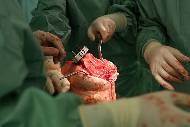 surgeon at work - implantation of a knew knee 2 - open wounds stock photos and pictures