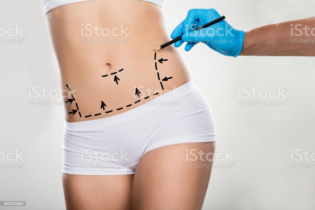 Surgeon Drawing Correction Lines On Woman's Stomach stock photo
