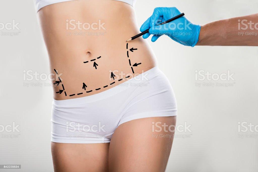 Lignes de Correction de dessin de chirurgien sur le ventre de la femme - Photo