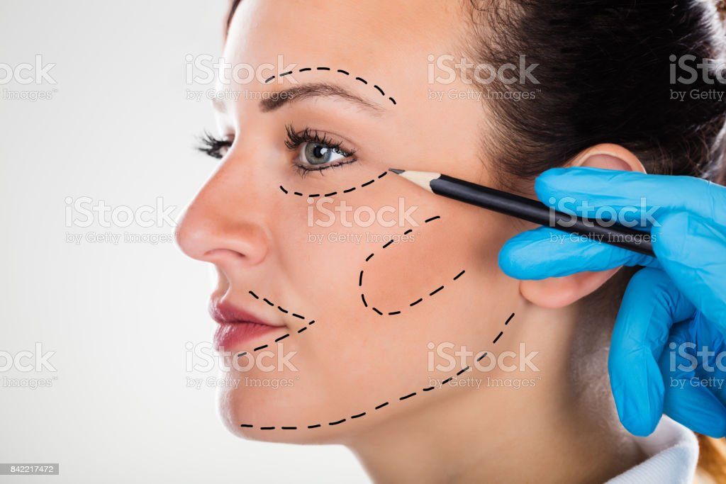 Surgeon Drawing Correction Lines On Young Woman Face stock photo