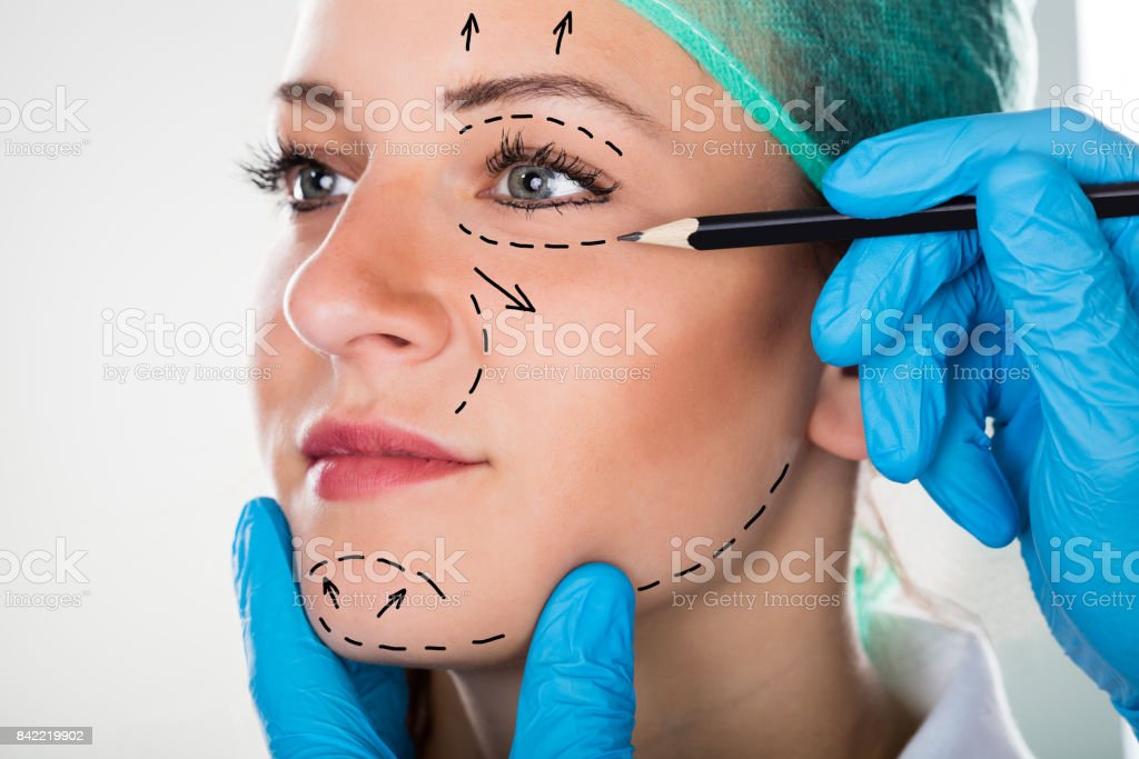 Surgeon Drawing Lines On Woman's Face For Plastic Surgery stock photo