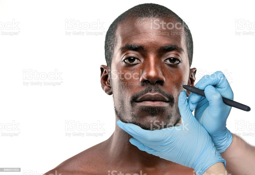 Surgeon drawing marks on male face against gray background. Plastic surgery concept stock photo