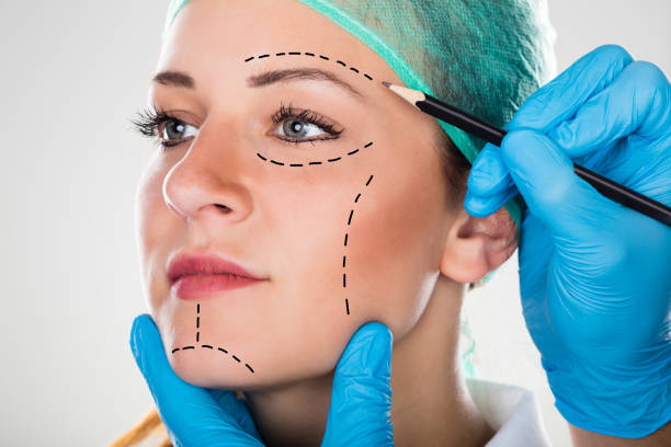 surgeon drawing perforation lines on woman's face - plastica foto e immagini stock