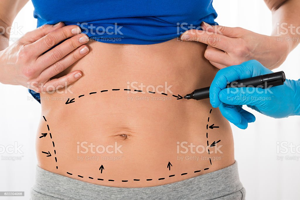 Surgeon Hands Drawing Correction Lines On Stomach stock photo