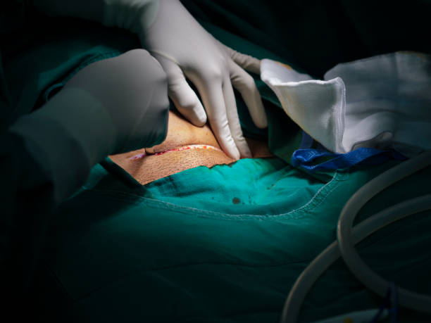 Surgeon or doctor and assistants hands wearing surgical sterile gloves doing surgical procedure or operation with skin incision under high key light tone of surgical lamp stock photo