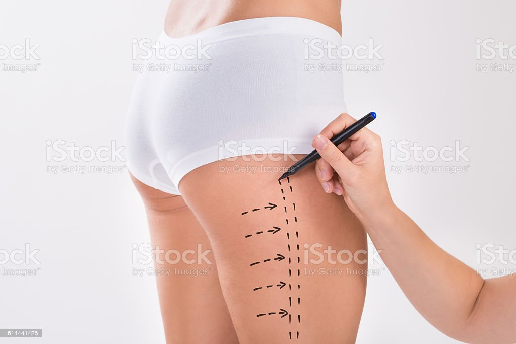 Surgeon Preparing Woman For Liposuction Surgery On Thigh stock photo