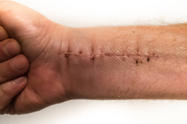 surgery on wrist - open wounds stock photos and pictures