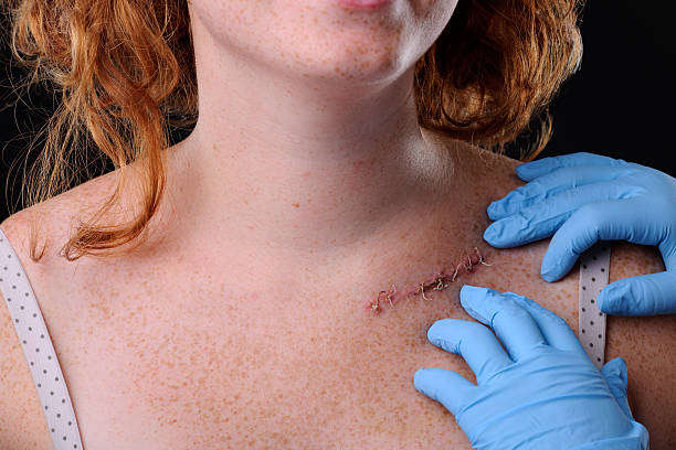 surgery - shoulder surgery stock photos and pictures