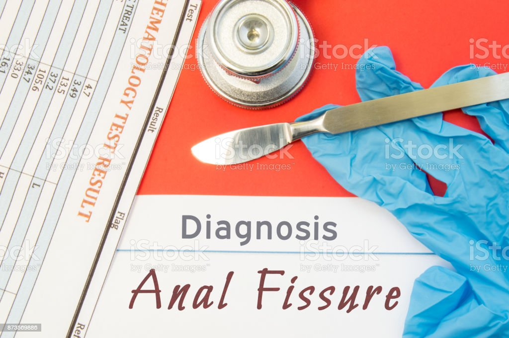 Surgical diagnosis of Anal Fissure. Surgical medical instrument scalpel, latex gloves, blood test analysis lie close beside text inscription diagnosis of Anal Fissure. Concept for surgical diseases - foto stock