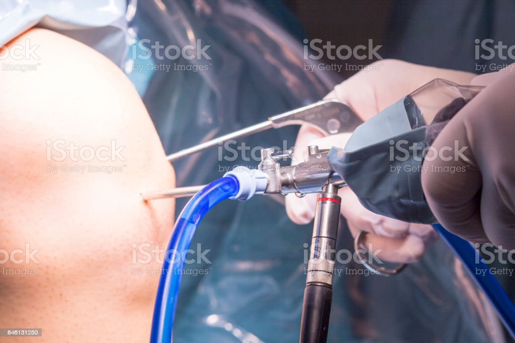 Surgical operation for knee arthroscopy micro surgery in hospital operating theater emergency room of traumatology and orthopedics. stock photo