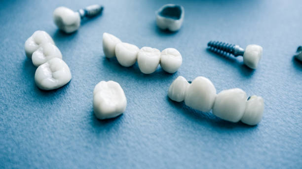 surgical orthodontics ceramic dental implants Surgical orthodontics. Teeth reconstruction and prosthodontics. Closeup of dental implants and ceramic dentures. tooth crown stock pictures, royalty-free photos & images