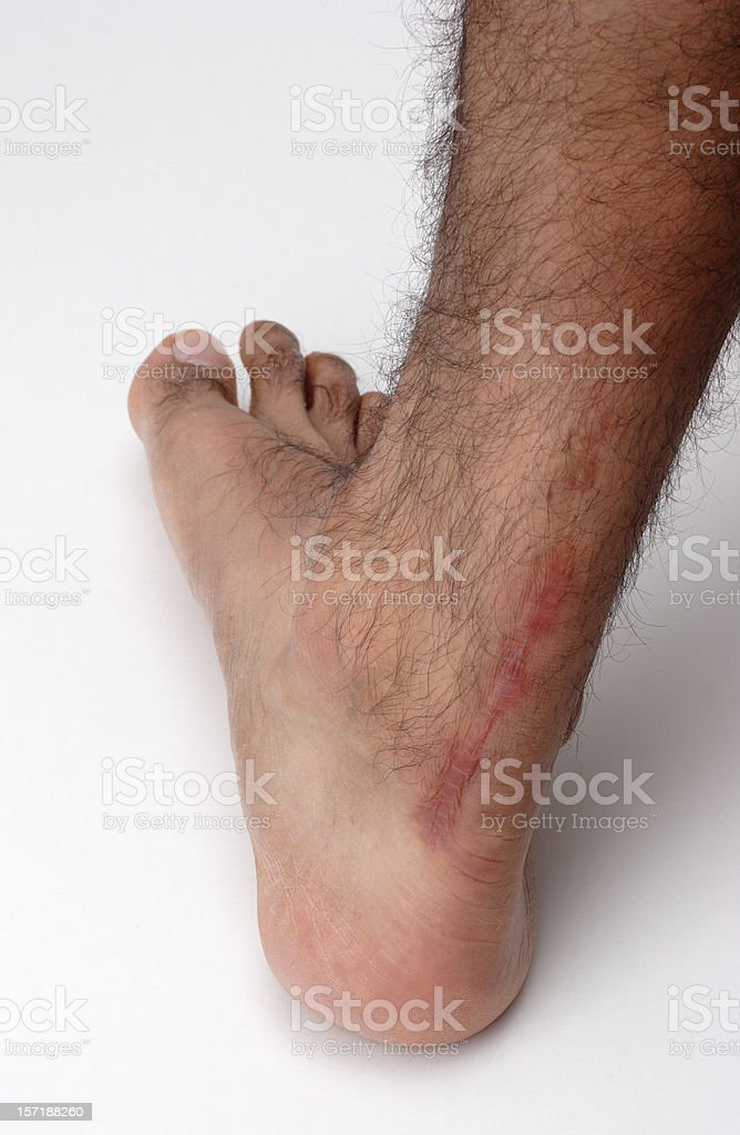 Surgical Scar From Achilles Tendon Injury stock photo