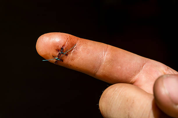 Surgical suture on the finger. ストックフォト