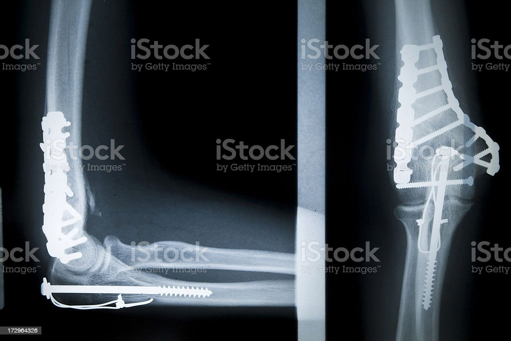 Surgically Repaired Elbow Bone X-Ray Series royalty-free stock photo