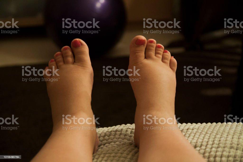 geschwollene füße in der schwangerschaft