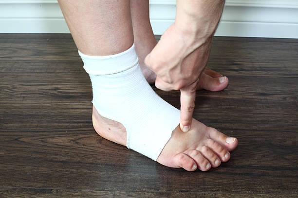 inchado pé em meia de compressão durante a gravidez - swollen arm woman - fotografias e filmes do acervo