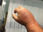 Swollen hand in emergency room from Lionfish sting.