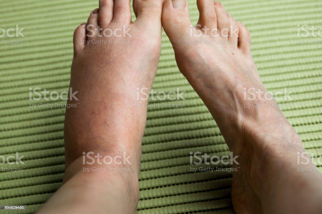 Geschwollene Beine: Bienenstich – Foto